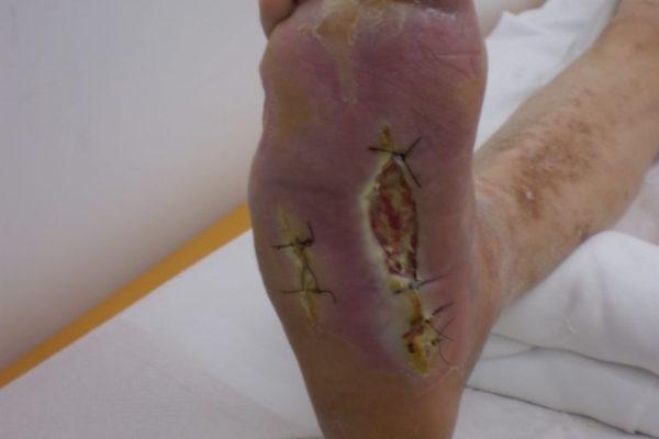 diabetic-foot-2