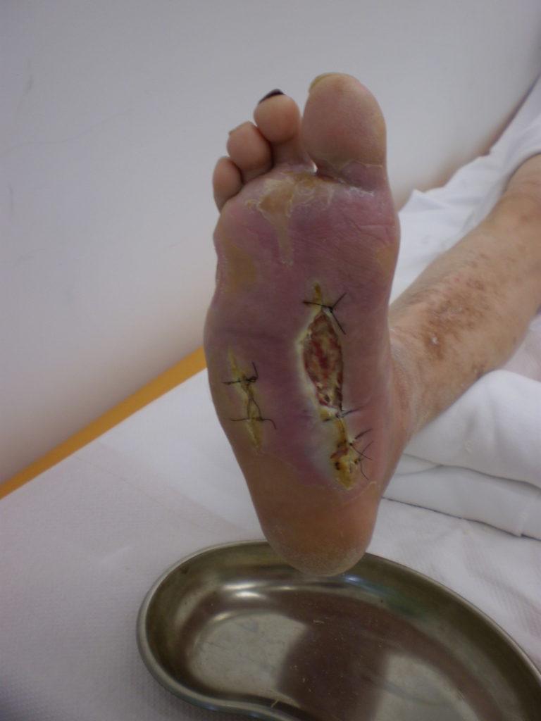 Diabetic Foot Cuba Medic Treatment Of All Types Of
