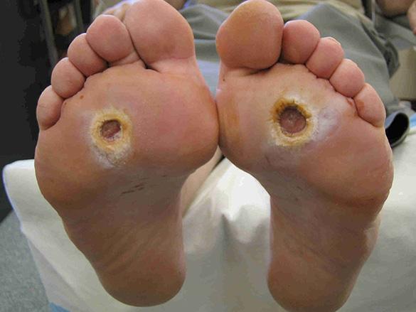 Dijabetesno stopalo - lečenje Srbija