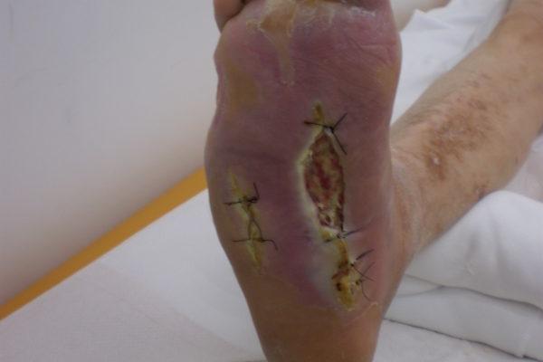 dijabetsko-stopalo