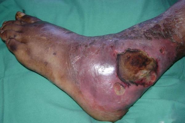 dijabetsko stopalo, lečenje dijabetskog stopala